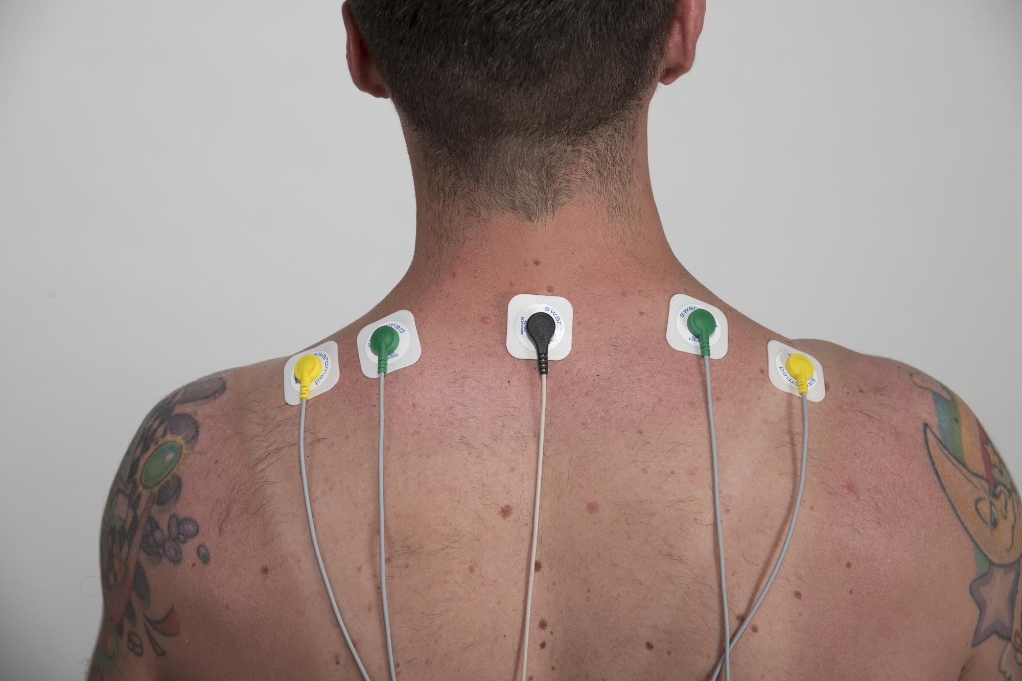 Biofeedback Sport: Anbringung von EMG-Elektroden auf dem Trapezius beim Biofeedback